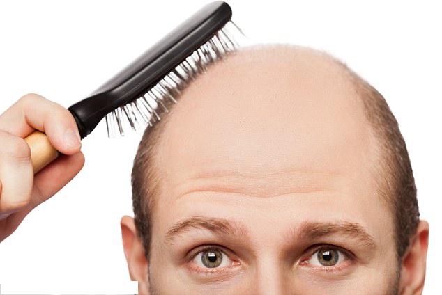 Saç Ekiminde İyileşme Süresi